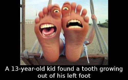 kidfoot
