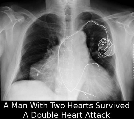 a98828_extra-body_6-transplanted-heart