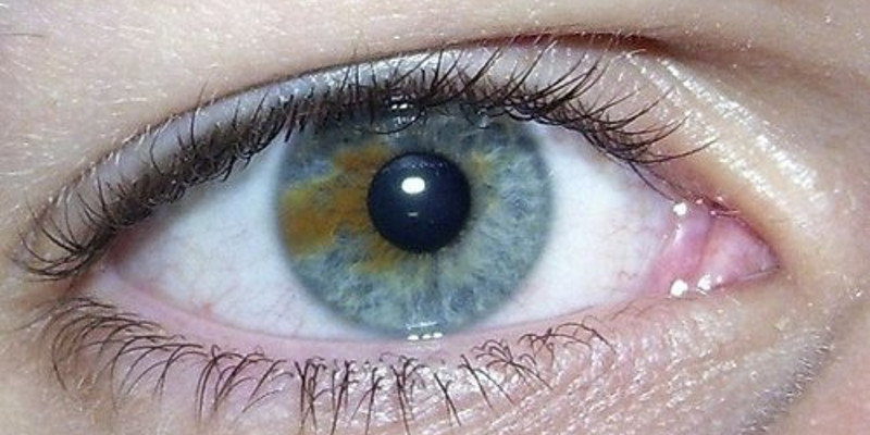 Brown Eyes Are Actually Blue Underneath And As A Result There Exists Laser Surgery To Turn Brown Eyes Blue