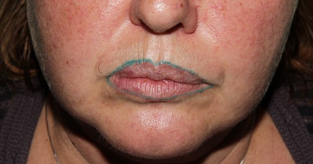 A Woman S Nightmare Became True When Her Lip Tattoo Turned Green After Cosmetic Surgery Facts Wt Especially when coupled with other accessories such as earrings pierced the vaginal lips. her lip tattoo turned green